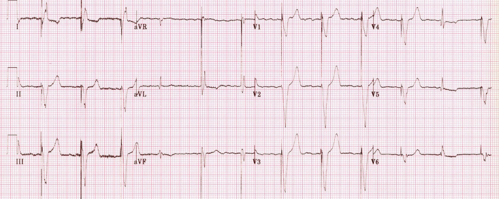 Ventricular-pacing-with-AF-and-fusion-beats